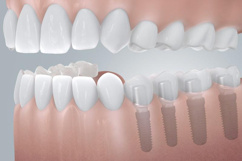 Implantologie bei der Zahnklinik Bunde. HOCHWERTIGER ZAHNERSATZ FÜR MEHR LEBENSQUALITÄT.