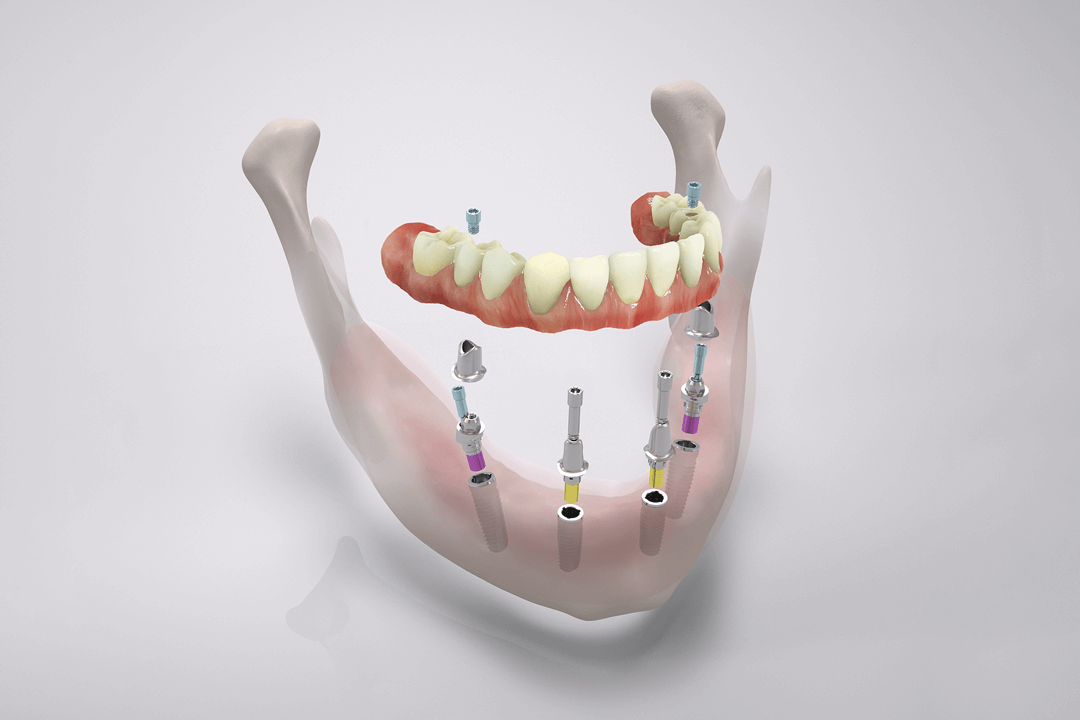 The 4DENS. - System. Fixed teeth in one day.
