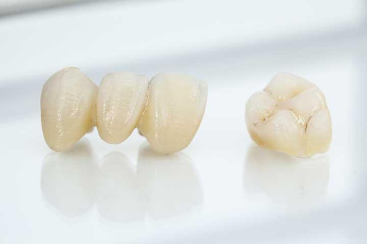 Das 4Dens. - System. Feste Zähne an einem Tag.